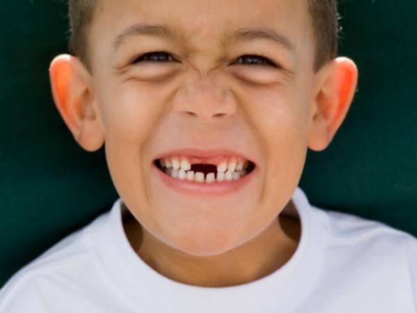 Gãy răng là điềm gì